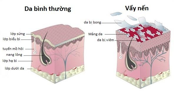 Bệnh vẩy nến khiến cho làn da bong tróc
