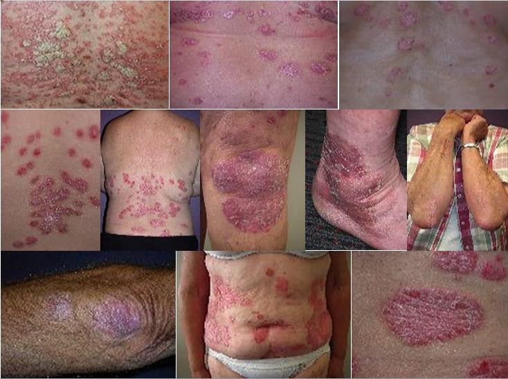Bệnh vẩy nến xuất hiện thành từng mảng lớn trên bề mặt da