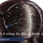Bệnh á sừng da đầu