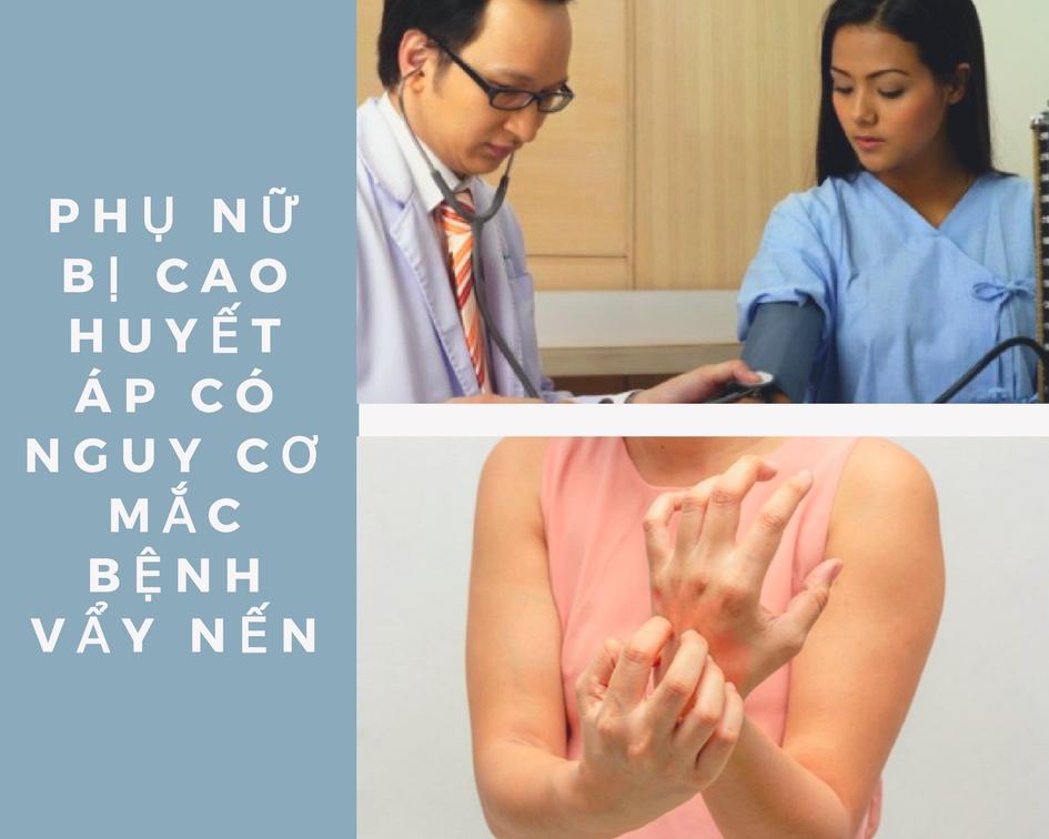 Phụ nữ cao huyết áp có nguy cơ mắc bệnh vẩy nến