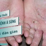 Chữa bệnh á sừng bằng các bài thuốc Đông y