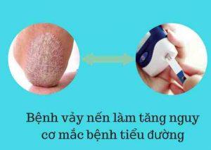 bệnh vảy nến làm tăng nguy cơ mắc bệnh tiểu đường