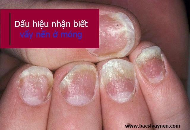 Dấu hiệu nhận biết bệnh vẩy nến ở móng tay, móng chân
