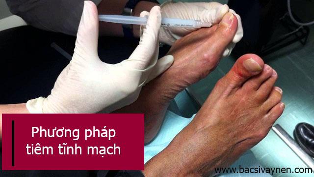 điều trị bệnh vẩy nến móng tay, móng chân bằng Tây y