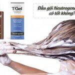 dầu gội Neutrogena trị vẩy nến tốt không
