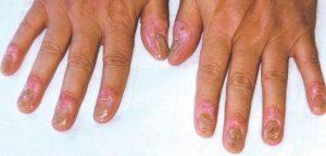 Đối tượng dễ mắc bệnh viêm khớp vảy nến