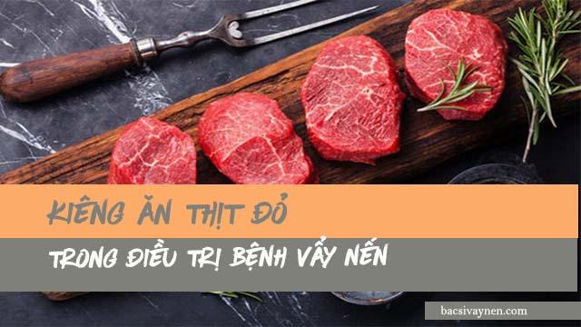 Không nên ăn thịt đỏ trong điều trị bệnh vẩy nên