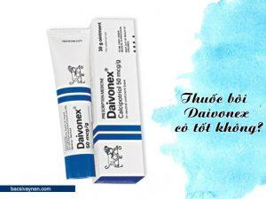 thuốc bôi Daivonex có tốt không