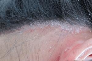 Bệnh vẩy nến da đầu