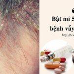 5 cách chữa bệnh vẩy nến da đầu tại nhà ai cũng làm được