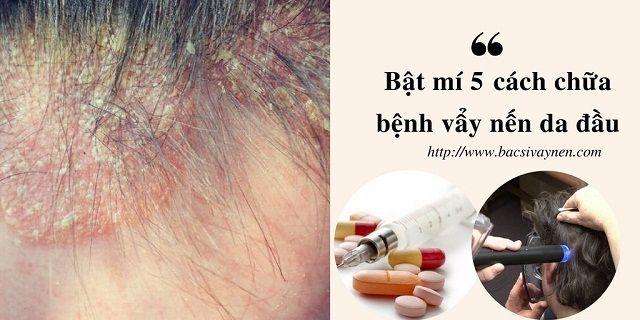 Cách chữa bệnh vẩy nến da đầu