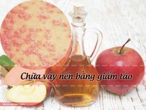 chữa vảy nến bằng giấm táo