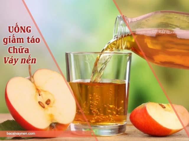 uống giấm táo chữa vảy nến