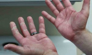 Biểu hiện của bệnh viêm khớp vẩy nến