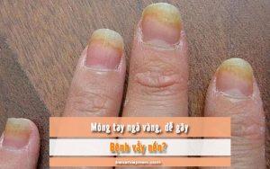 móng tay bị gãy và ngả vàng có phải là bệnh vẩy nến