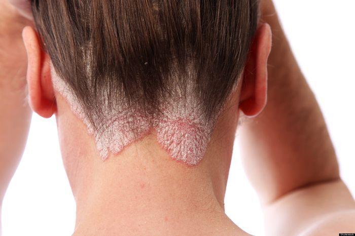 dấu hiệu vẩy nến da đầu