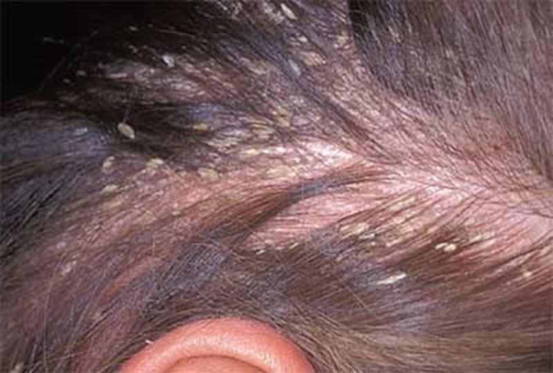 Da đầu bị bong tróc vẩy là dấu hiệu bệnh vẩy nến