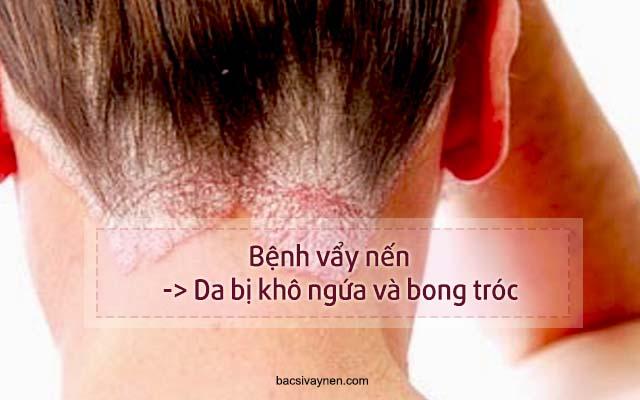 da bị ngứa và khô ráp là biểu hiện của bệnh gì