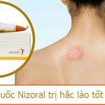 thuốc Nirozal trị hắc lào