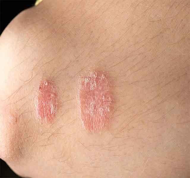 Những biểu hiện của bệnh vẩy nến