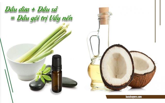 dầu gội trị vẩy nến từ dầu dừa và dầu sả