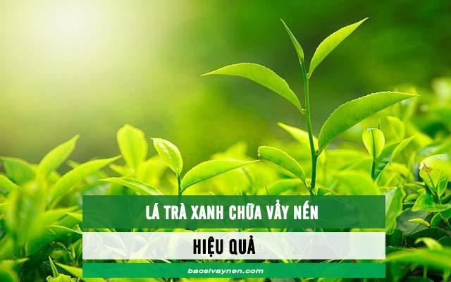 Lá trà xanh chữa bệnh vẩy nến