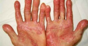 Bệnh viêm khớp vẩy nến có nguy hiểm không?
