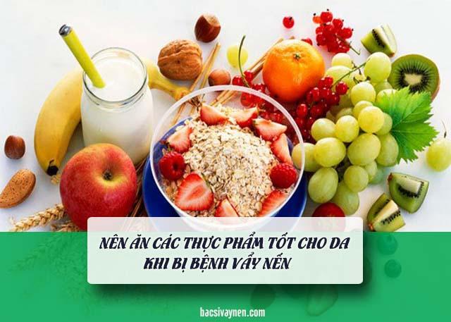 chế độ ăn uống là cách hỗ trợ trị vẩy nến tại nhà
