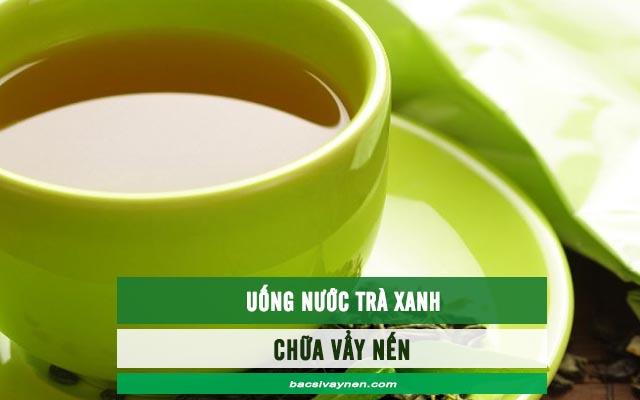 chữa vẩy nến bằng nước trà xanh