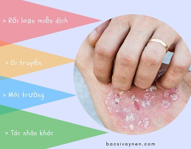 Nguyên nhân gây bệnh vẩy nến