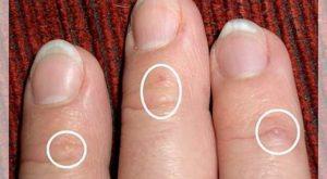 Nguyên nhân và cách chữa bệnh chàm tổ đỉa -2