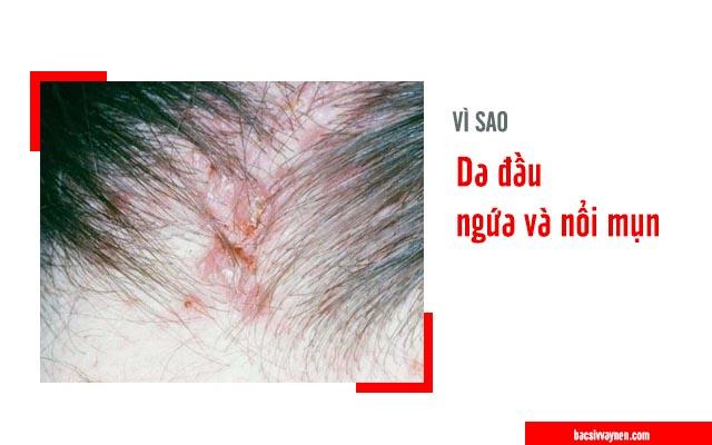 nguyên nhân da đầu ngứa và nổi mụn
