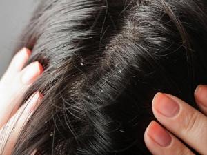 Bị viêm da tiết bã gây rụng tóc ta nên làm gì?-3