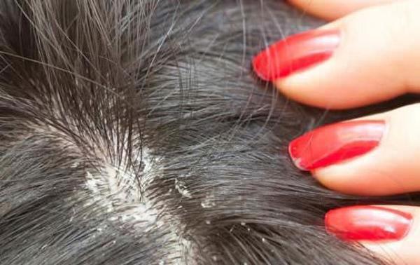 Bị viêm da tiết bã gây rụng tóc ta nên làm gì?-2