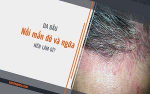 da đầu nổi mẩn đỏ và ngứa thì nên làm gì