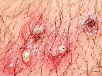 Kinh nghiệm điều trị viêm nang lông vùng kín tận gốc-2