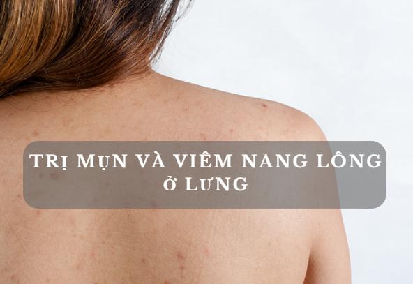 Cách điều trị mụn lưng và viêm nang lông ở lưng thật dễ dàng-1