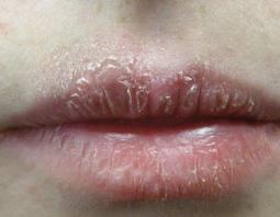 Chia sẻ cách chữa chàm môi bằng Đông y-1