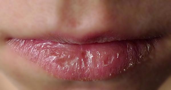Chia sẻ cách chữa chàm môi bằng Đông y-4