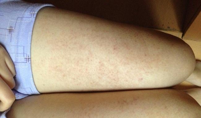 Chữa viêm nang lông bằng thuốc Đông Y-1