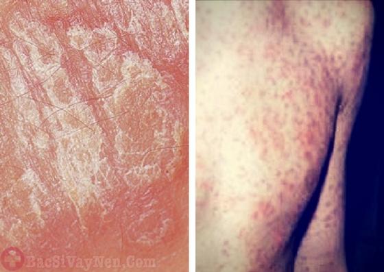 Dấu hiệu bệnh vẩy nến ( phía bên trái), hội chứng HIV ( phía bên phải)