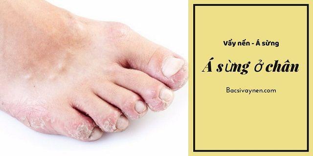 Hình ảnh bệnh á sừng ở gót chân