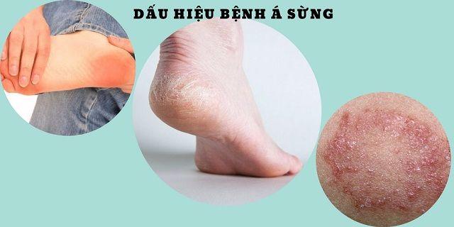 Dấu hiệu nhân biết bệnh á sừng ở chân