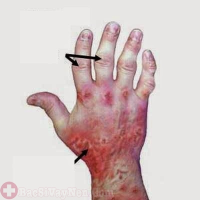 Tác hại tổn thương khớp xương do bệnh vảy nến