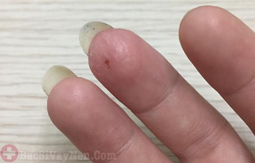 Dấu hiệu bệnh á sừng giai đoạn đầu xuất hiện trên 1 ngón tay