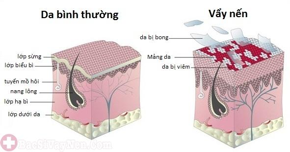 Cấu trúc làn da tổn thương do bệnh vảy nến gây ngứa