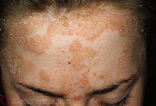 Triệu chứng bệnh vảy nến trên mặt