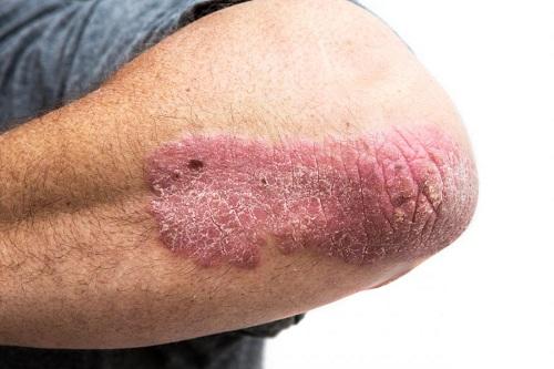 Bệnh vẩy nến ở khuỷu tay