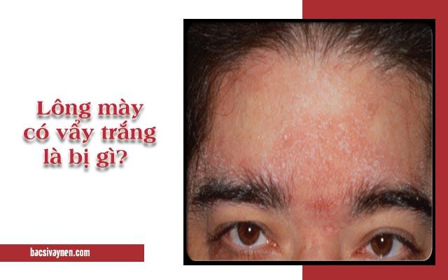 lông mày bị vẩy trắng là bệnh gì