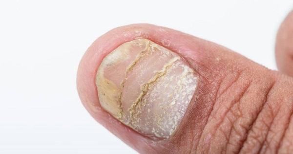 Dấu hiệu bệnh vẩy nến thể móng
